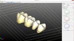 Multicolor Positioning Tool, pritidenta MPT | günstig bestellen bei WEBER DENTAL STUTTGART